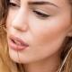 Droge lippen voorkomen tips